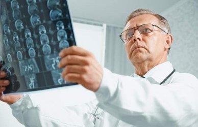 Пробив в изследванията за превенция на алцхаймер