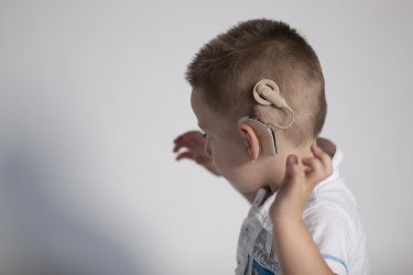 Само малка част от хората със слухови проблеми у нас получават шанс да чуват отново