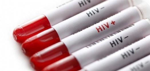 От началото на годината са открити нови 28 случая на ХИВ