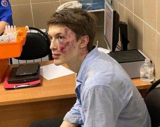 Критик на Кремъл е тежко ранен при нападение в Москва