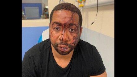Франция разследва четирима полицаи, обвинени в побой над чернокож